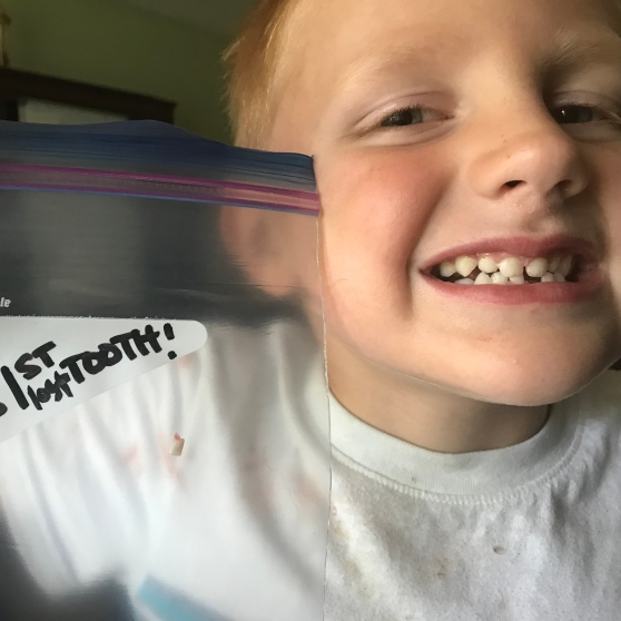 "Boy with missing tooth holding Ziploc bag that says ""1st lost tooth"" (the tooth is in the bag)."